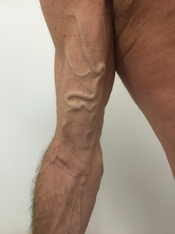 IF_UpperLimbVeins_BEFORE