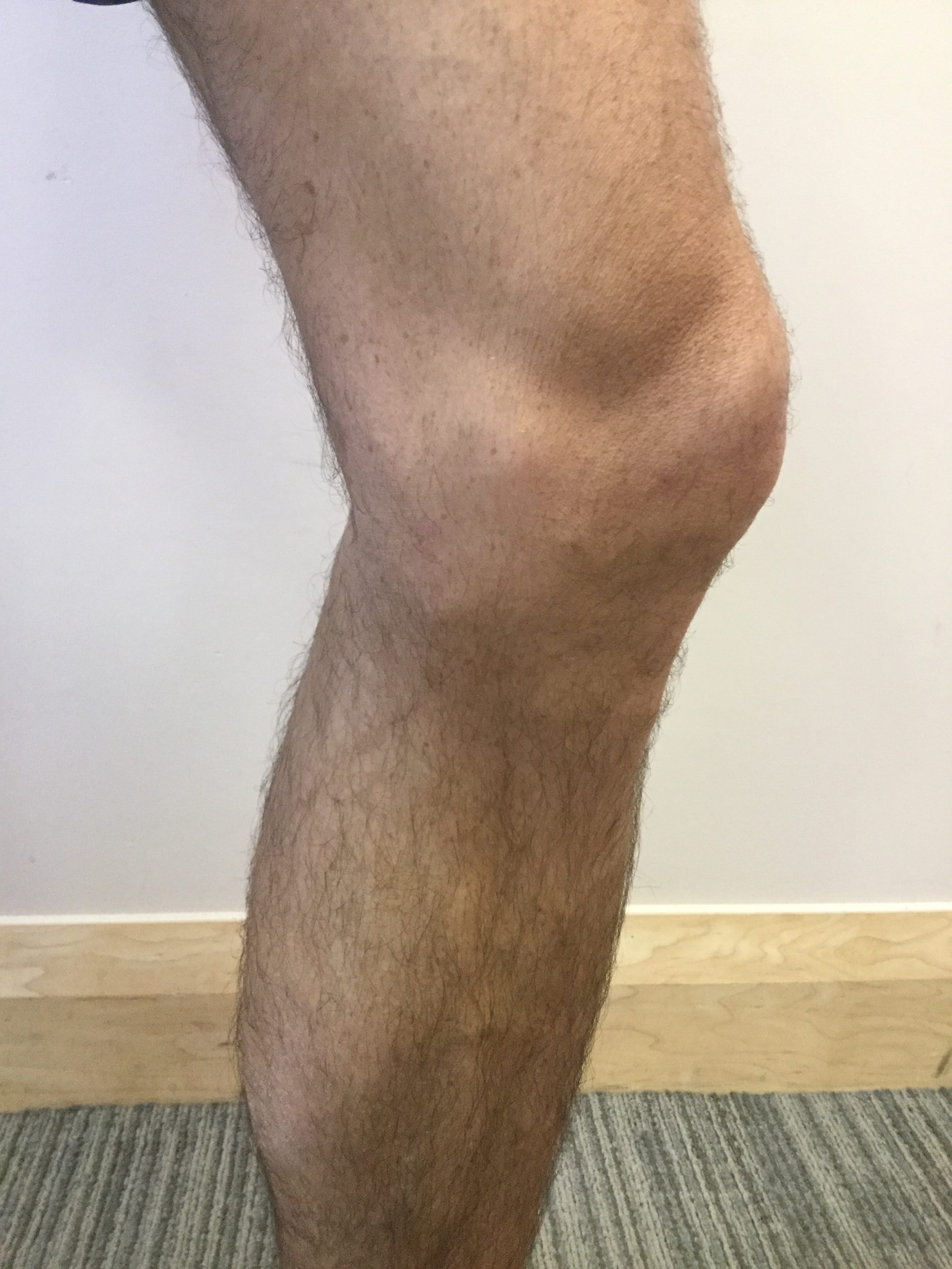 Varicose_veins_male_AFTER(2)