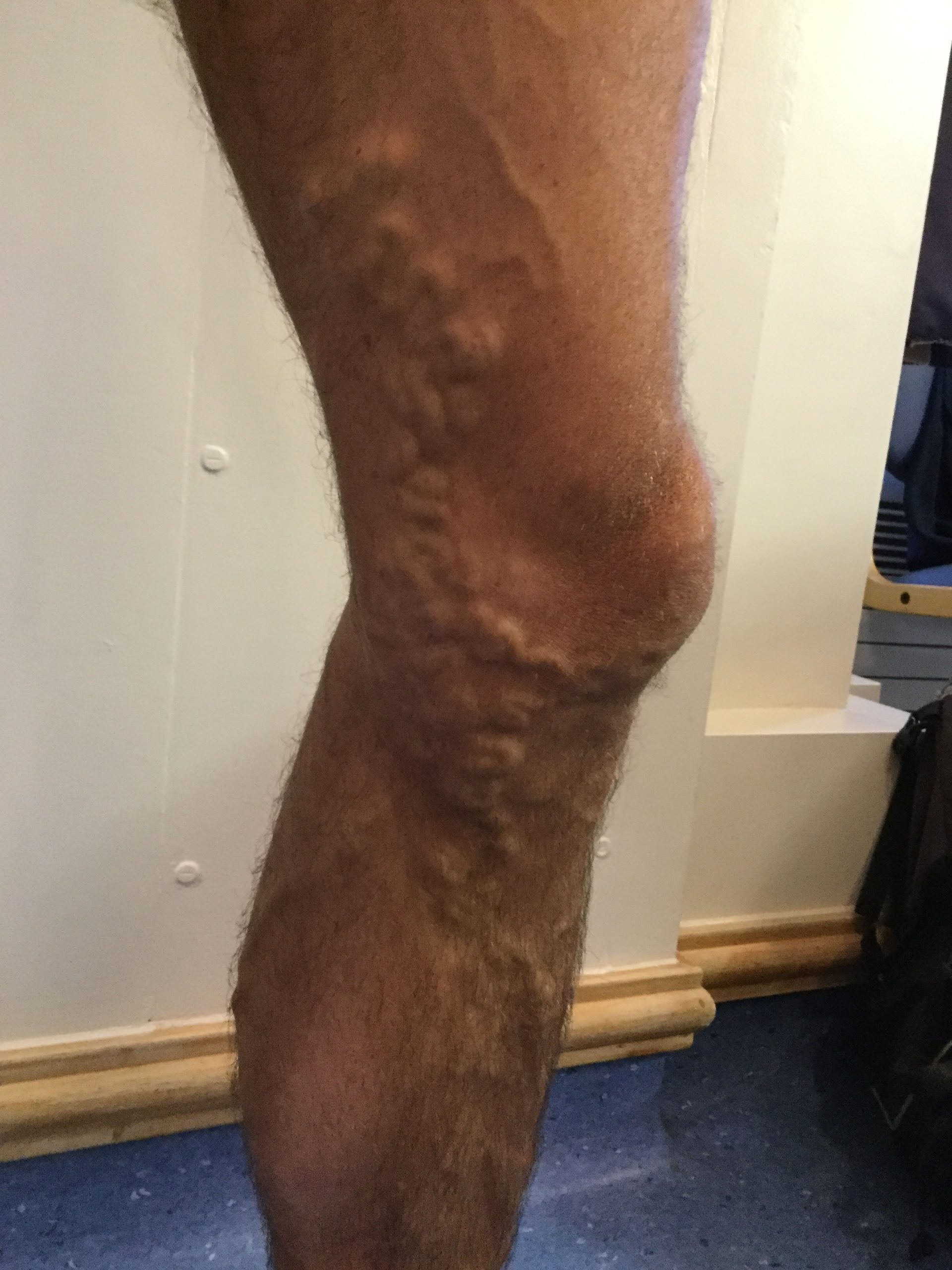 Varicose_veins_male_BEFORE