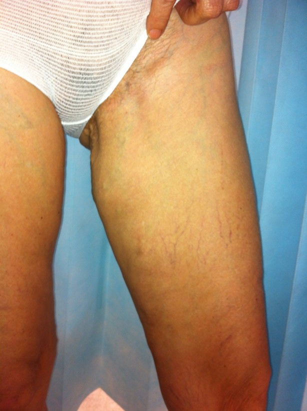 W_50s_varicose_veins_inner_thigh_AFTER