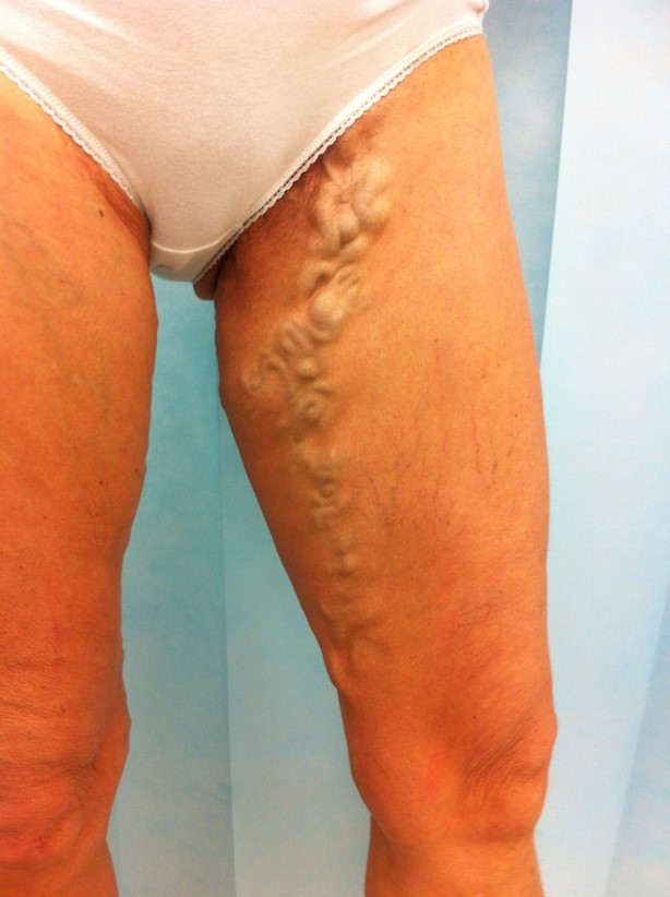 W_50s_varicose_veins_inner_thigh_BEFORE