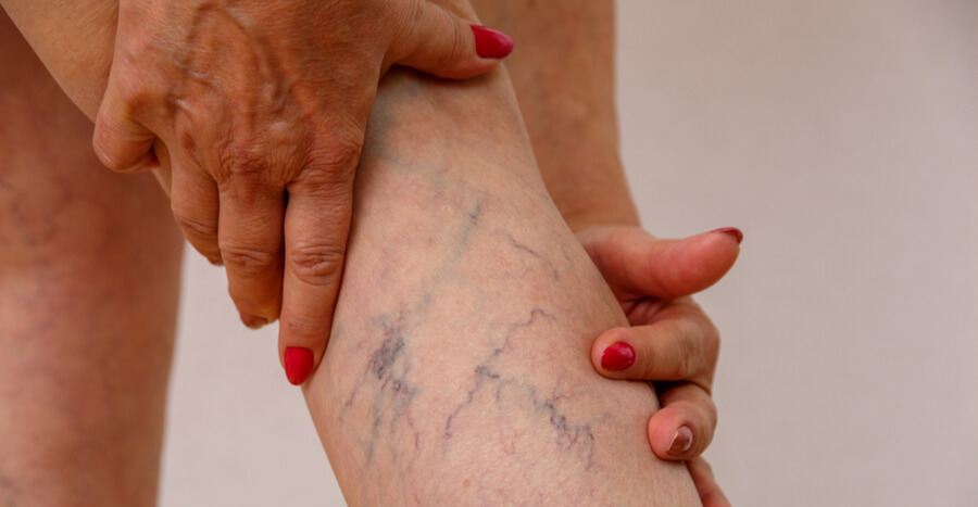 Superficial vein thrombosis: don't suffer in vain!