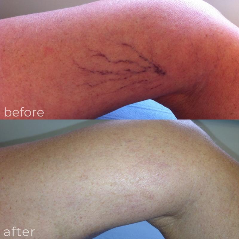 LVC treatments threadveins 1
