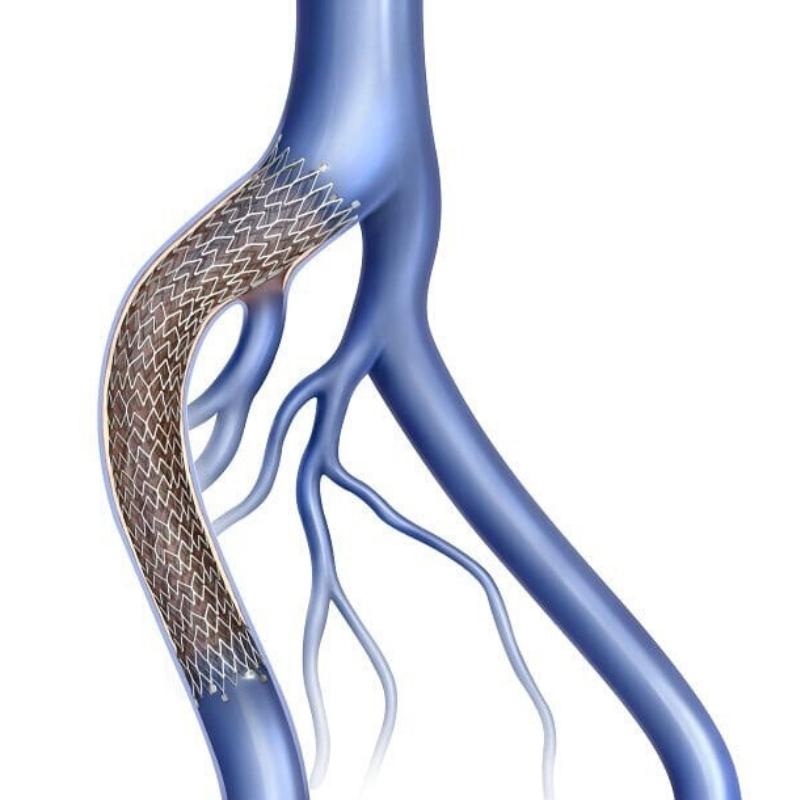 deep vein stent