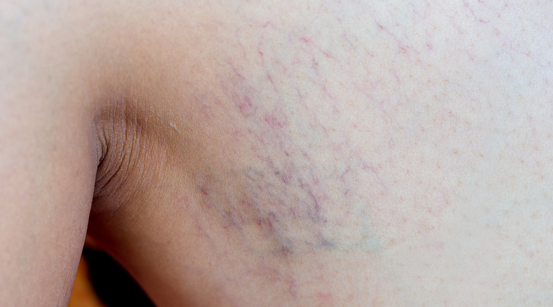 leg thread veins