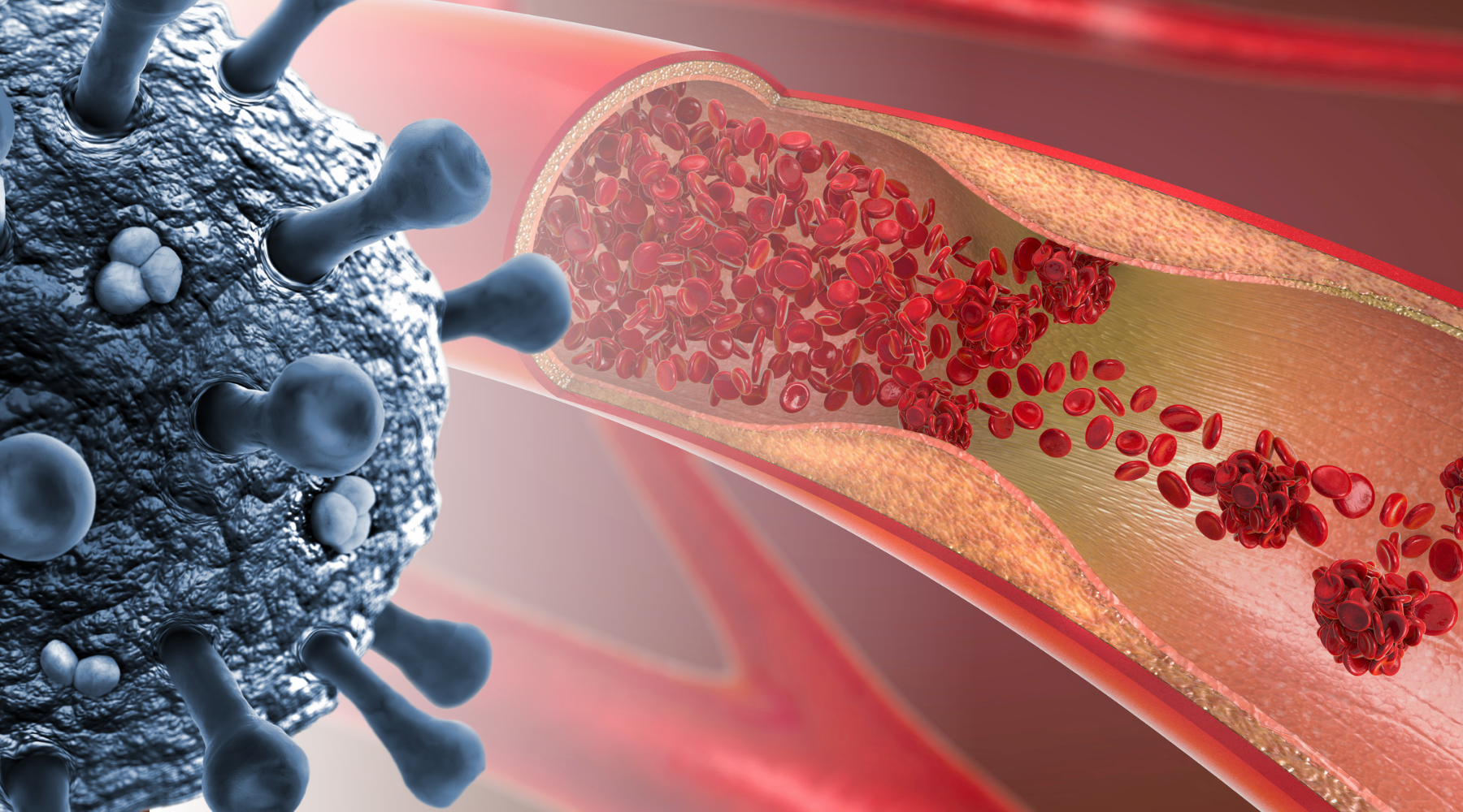 COVID-19 and thrombosis
