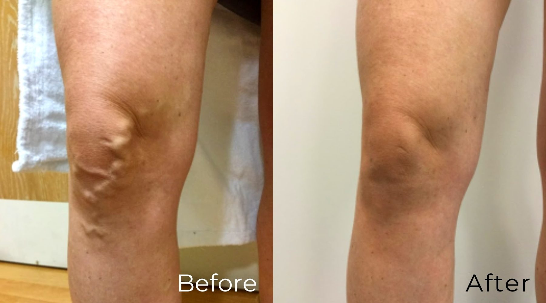 LVC_treatments_Phlebectomy