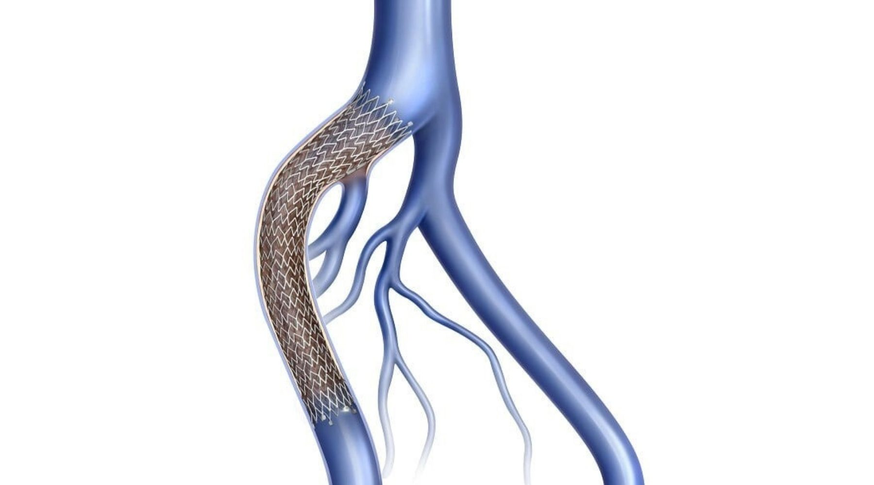 LVC_treatments_deep-vein_stenting