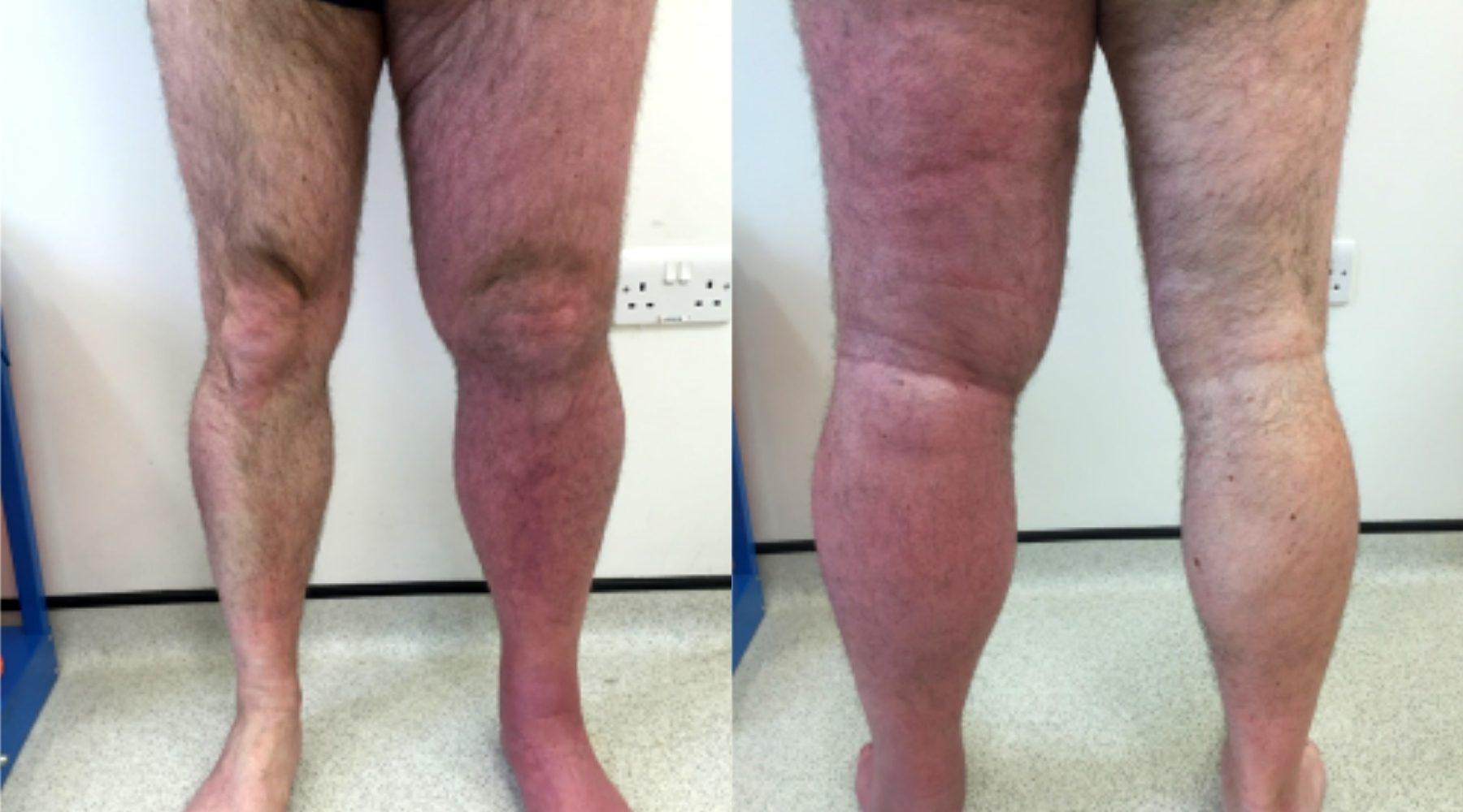 LVC_treatments_deep-vein_thrombosis_removal